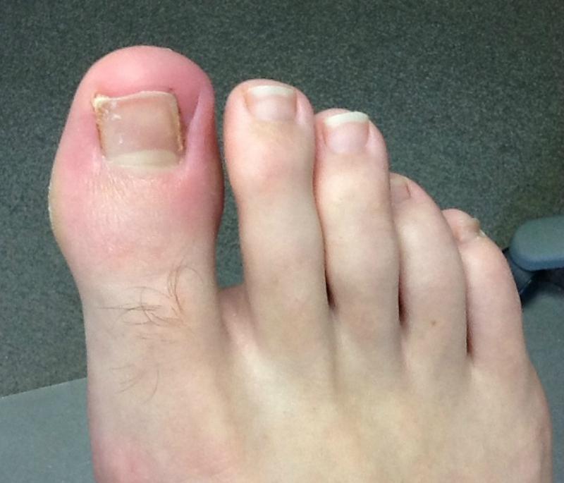 ingrowing-toenail-after-picmoney
