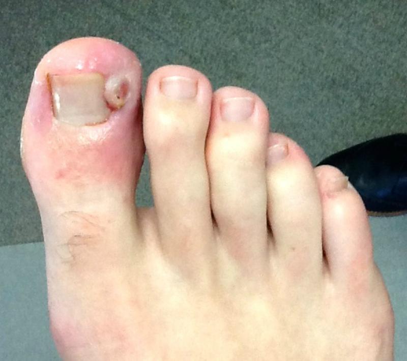 ingrowing-toenail-before-picmonkey